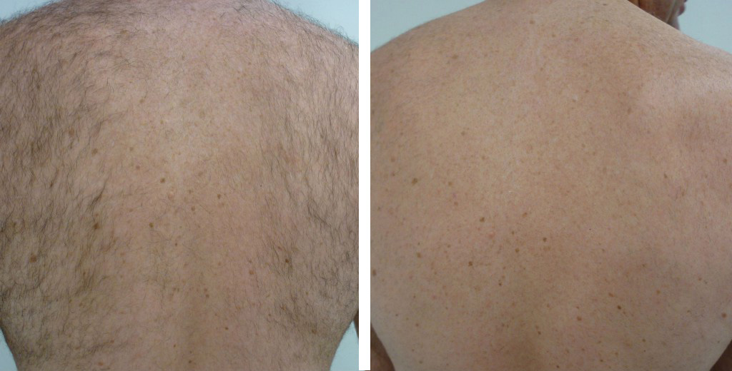 Laser-Hair-Removal-Brisbane-Prices2
