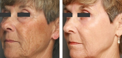 Refresh Me - CO2 Fractional Laser