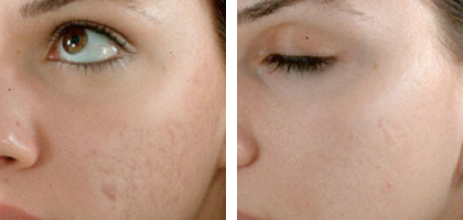 Refresh Me - Micro Needling Acne