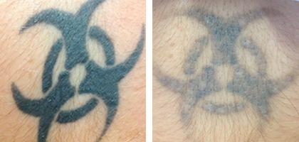 Refresh Me - Tattoo Removal